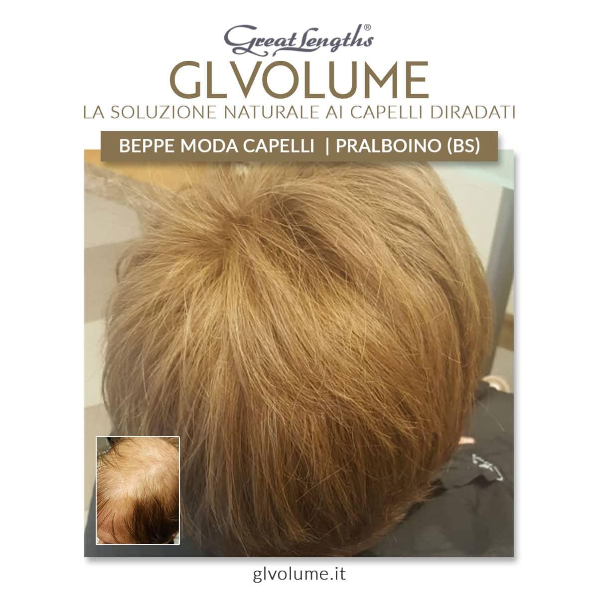 Prima e dopo infoltimento capelli diradati a Brescia con GL VOLUME Great Lengths